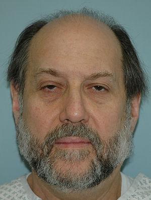English: Mitch Elias before hair transplant
