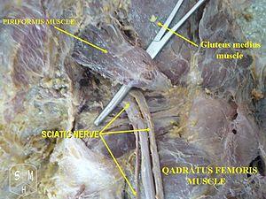 English: Sciatic nerve