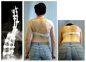 English: Result after scoliosis surgery. Deuts...