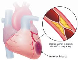 Coronary Ischemia