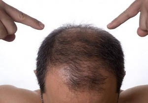 baldness treatment