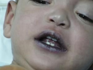 Cyanosis - purple lips