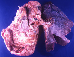 Small cell lung carcinoma simulating mesothelioma